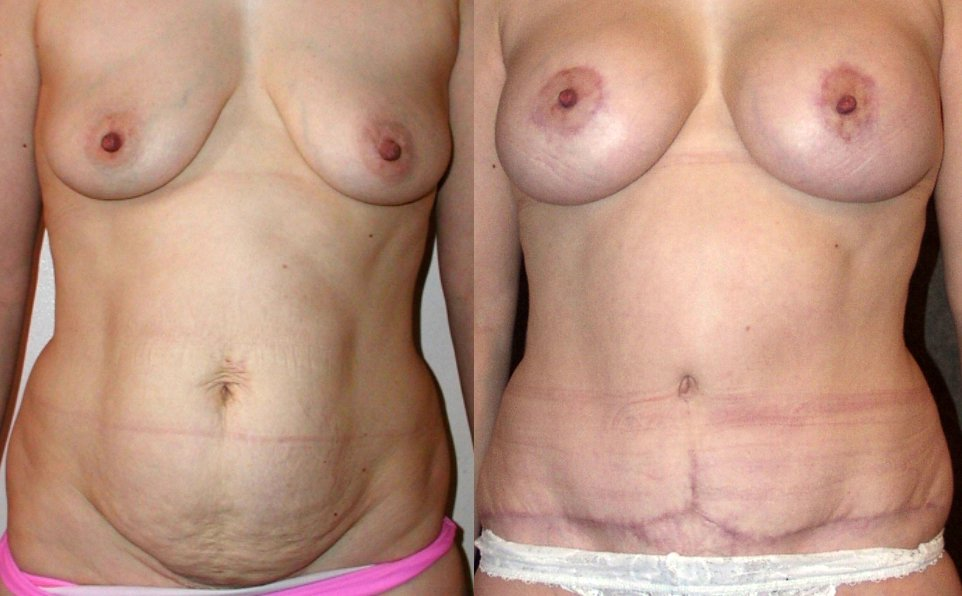 40-year-old abdominoplasty, breast augmentation , 6 months after surgery, front view