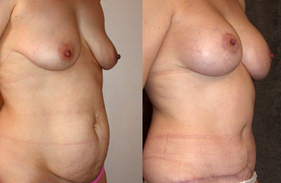40-year-old abdominoplasty, breast augmentation, 6 months after surgery, oblique view