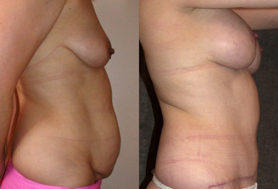 40-year-old Mommy Makeover, abdominoplasty, breast augmentation , 6 months after surgery, side view