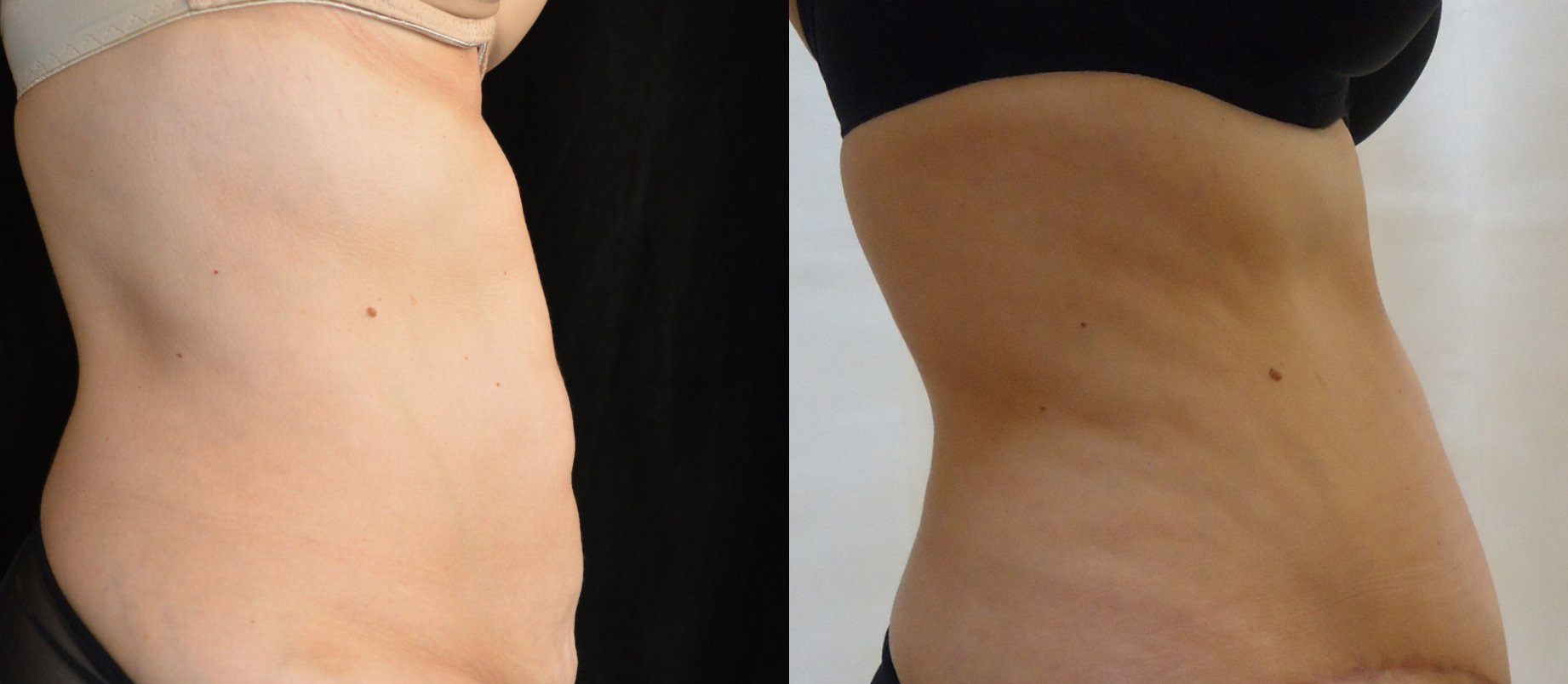 45-year-old 4 months after surgery removal of 817 gms. side view edit
