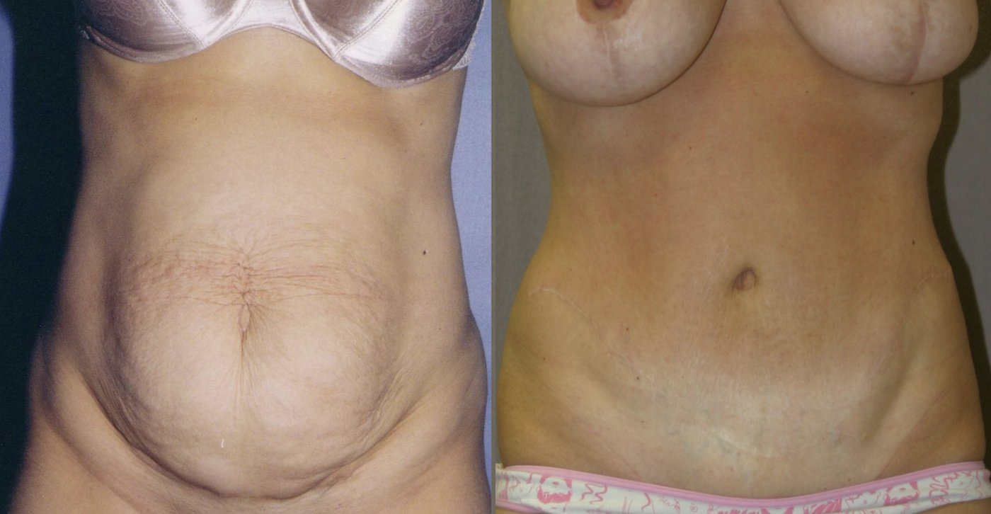 46-year-old abdominoplasty 8 years after surgery front view