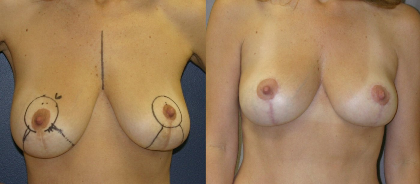 46-year-old breast auto-augmentation 7 months after surgery front view