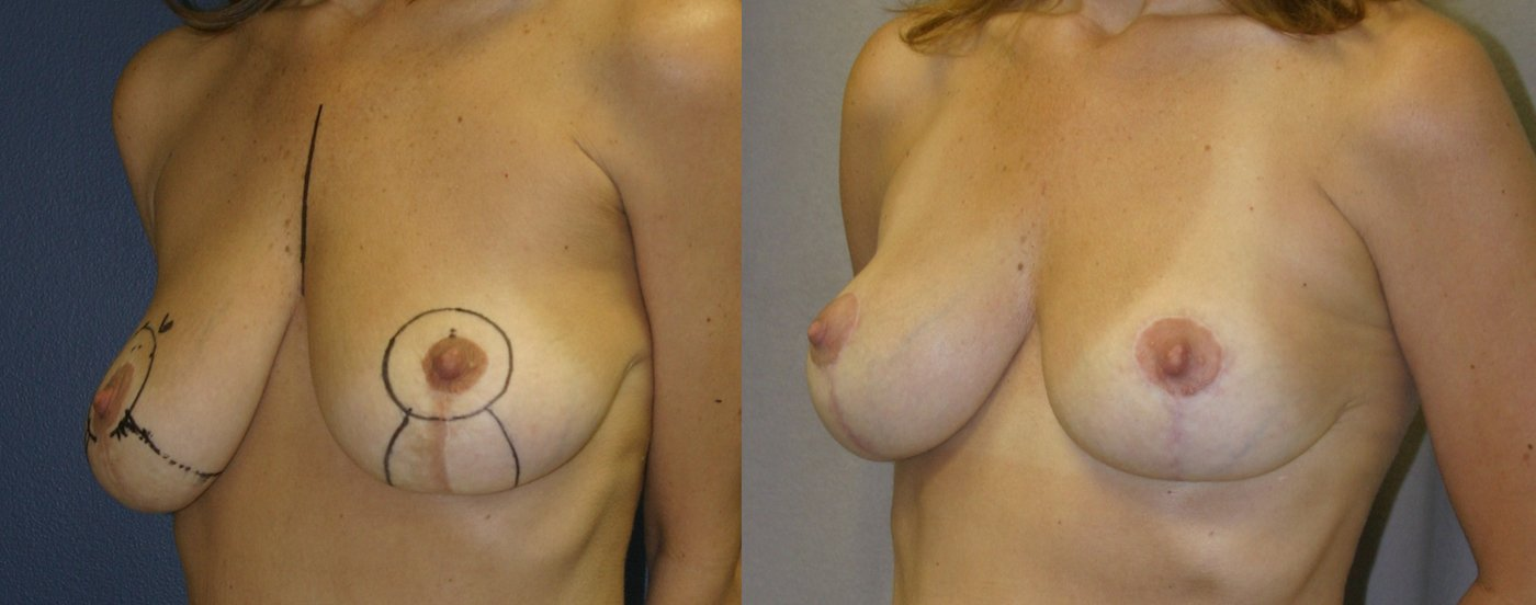 46-year-old breast auto-augmentation 7 months after surgery oblique view