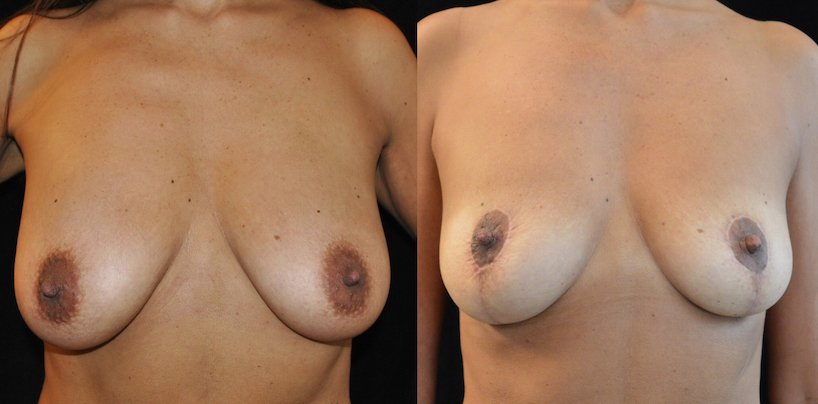 46-year-old breast auto-augmentation 8 months front view