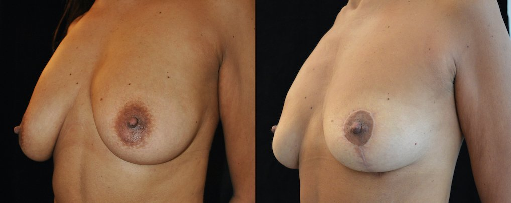 46-year-old breast auto-augmentation 8 months oblique view
