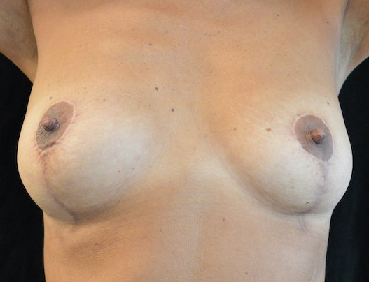 46-year-old breast auto-augmentation arms elevated showing vertical scar 8 months front view