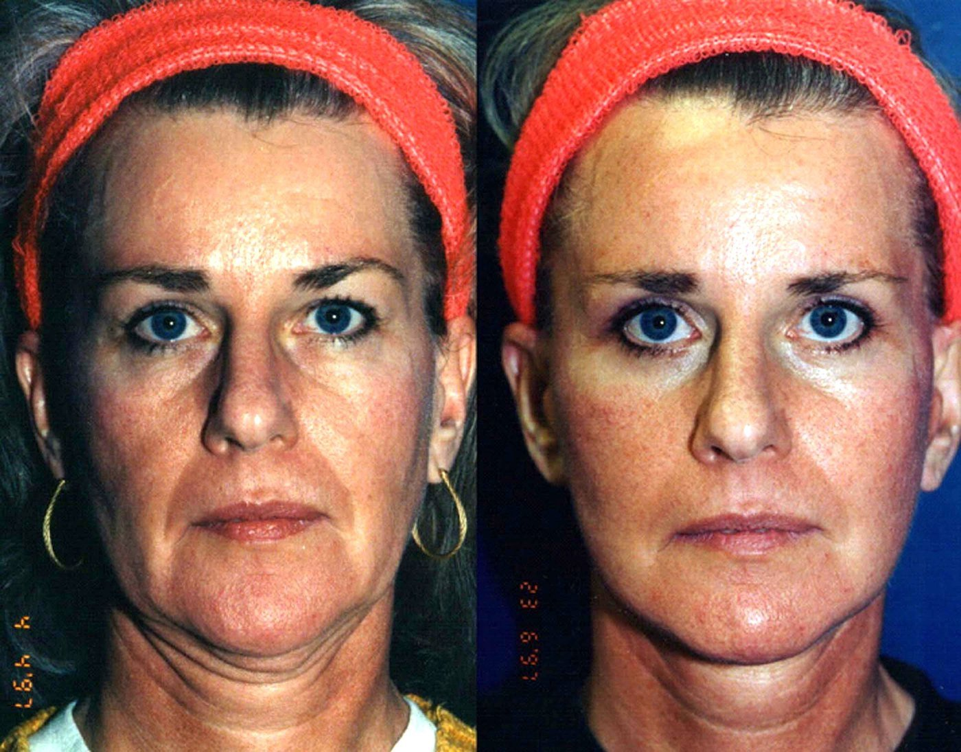 47 year old facelift and eyelids, six month follow-up front view
