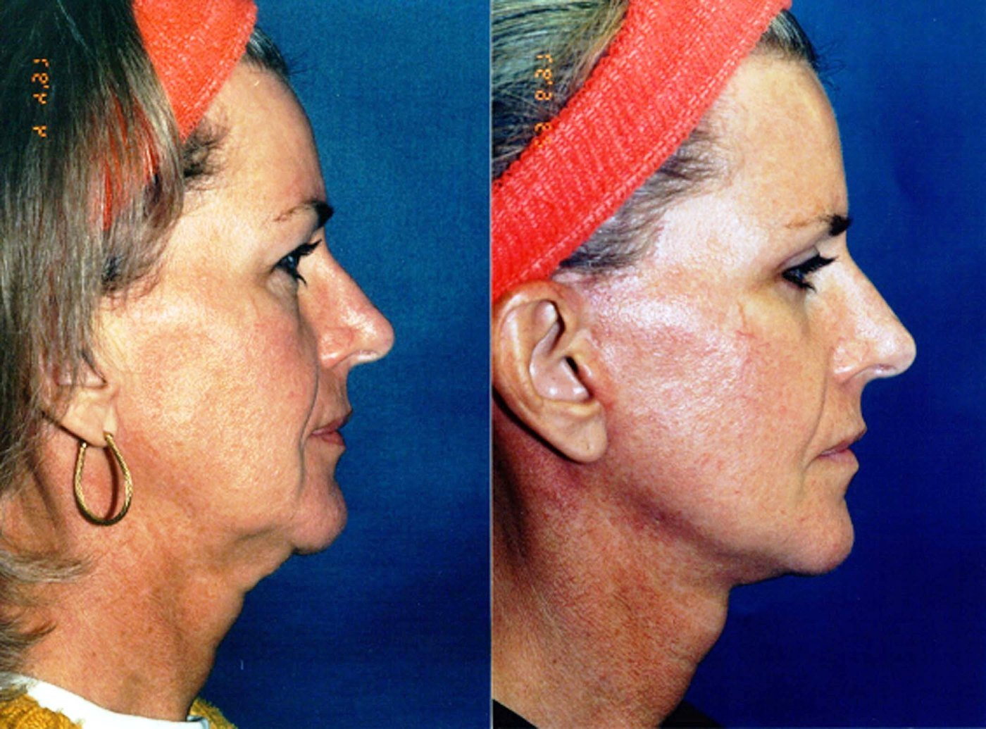 47 year old facelift and eyelids, six month follow-up side view