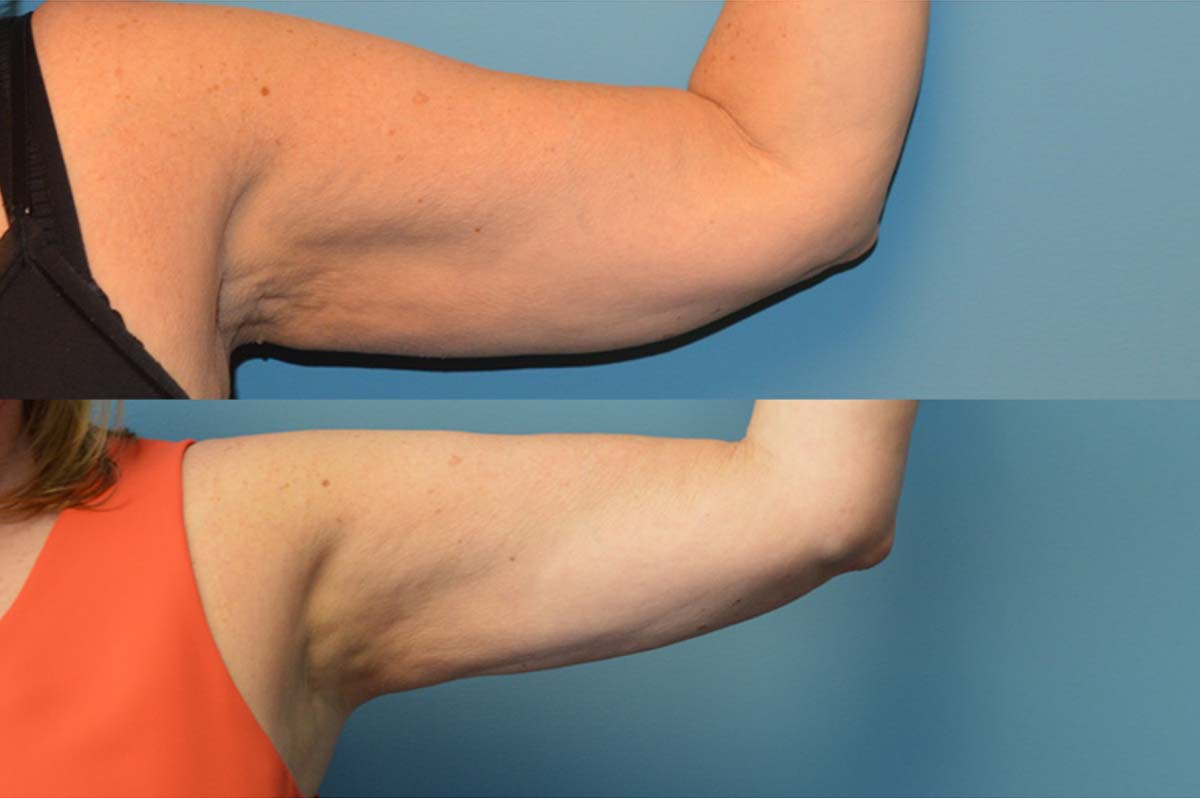 56 year old left arm 3 months after bodytite and liposuction front view