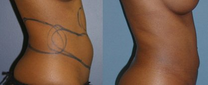Liposuction tummy and hips