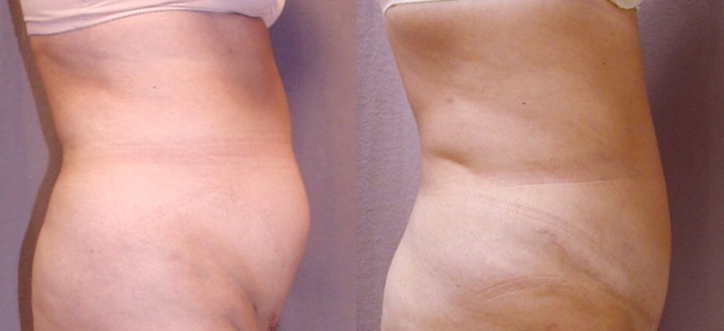 51-year-old abdominoplasty, 1 year after surgery, liposuction hips. side view