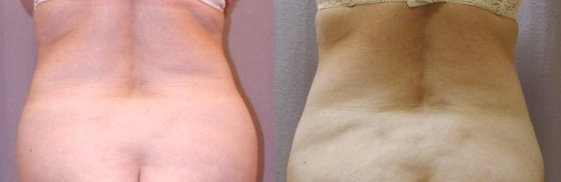 51-year-old abdominoplasty, 1 year after surgery, liposuction of hips, back view