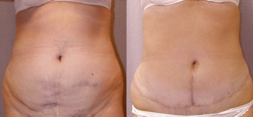 51-year-old abdominoplasty, 1 year after surgery, prior abdominal surgery scars, liposuction of hips, front view