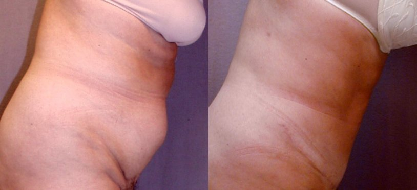 51-year-old abdominoplasty, 1 yr after surgery, liposuction hips, bending view