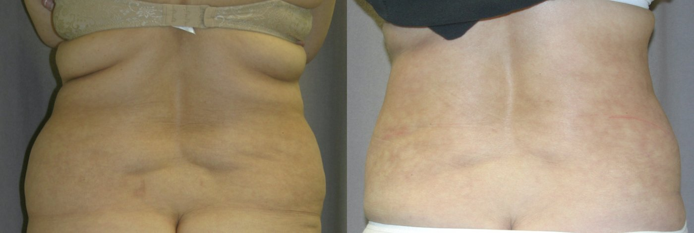 51-year-old abdominoplasty, liposuction of back 1 year after surgery, back view
