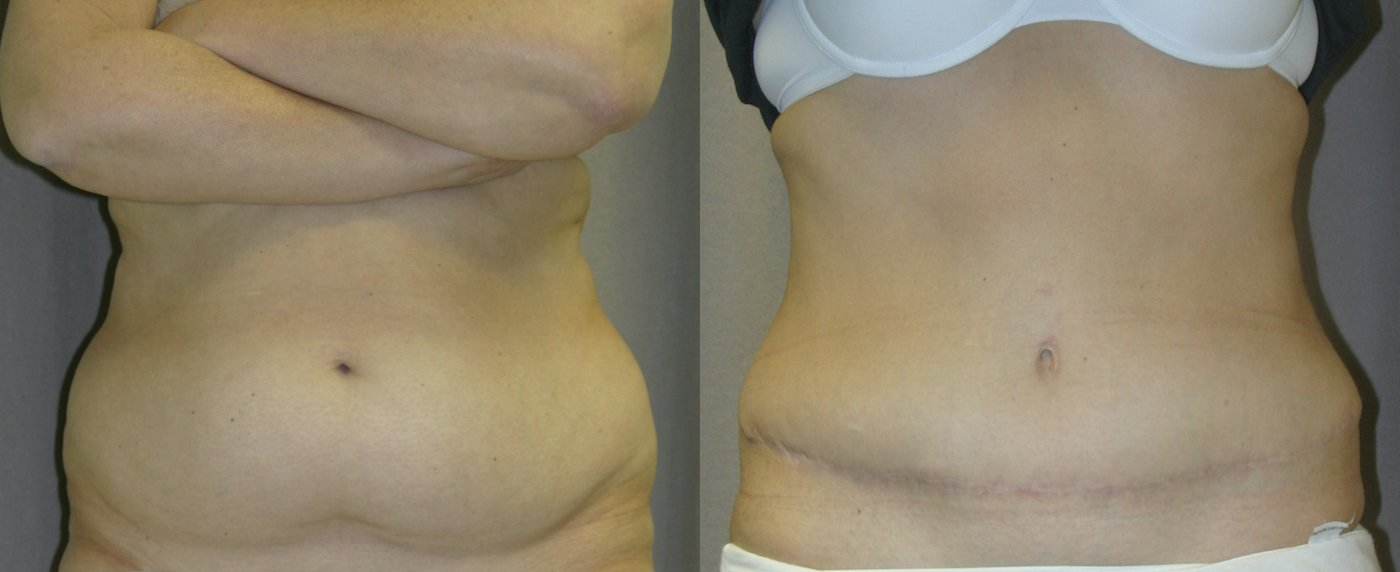 51-year-old abdominoplasty, liposuction of back 1 year after surgery, front view