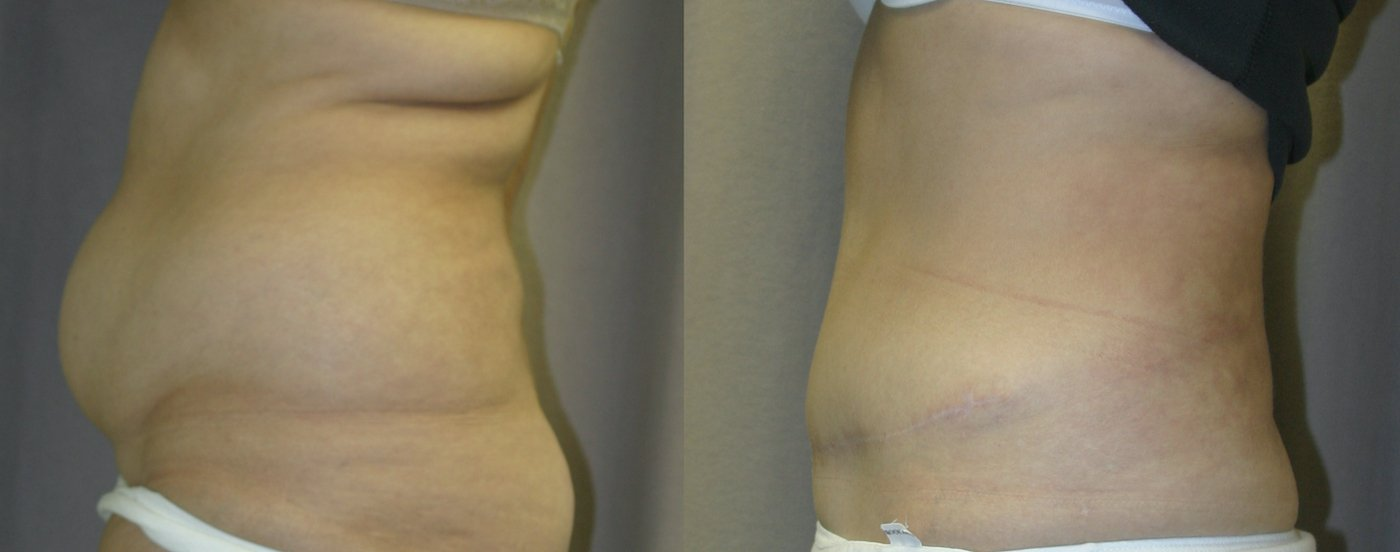 51-year-old abdominoplasty, liposuction of back 1 year after surgery, left side view