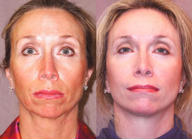 51-year-old, endobrow, upper lower eyelids, 18 months after, facelift, chin augmentation CSC, 6 months after. Front view.