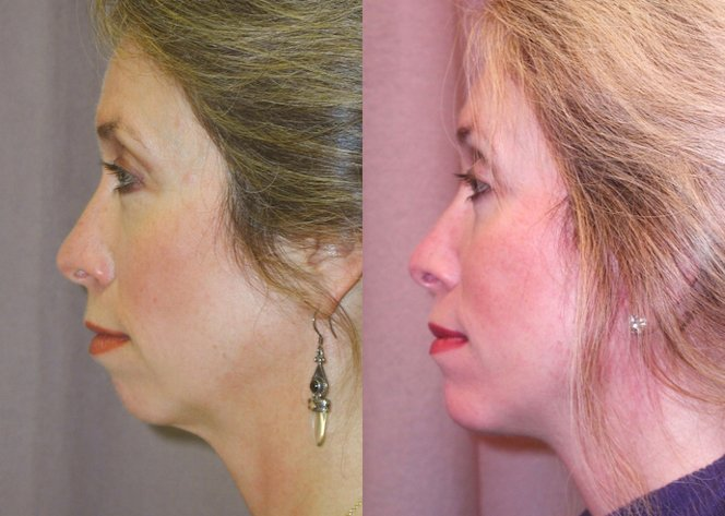 51-year-old, endobrow, upper lower eyelids, 18 months after, facelift, chin augmentation CSC, 6 months after. Left side view.