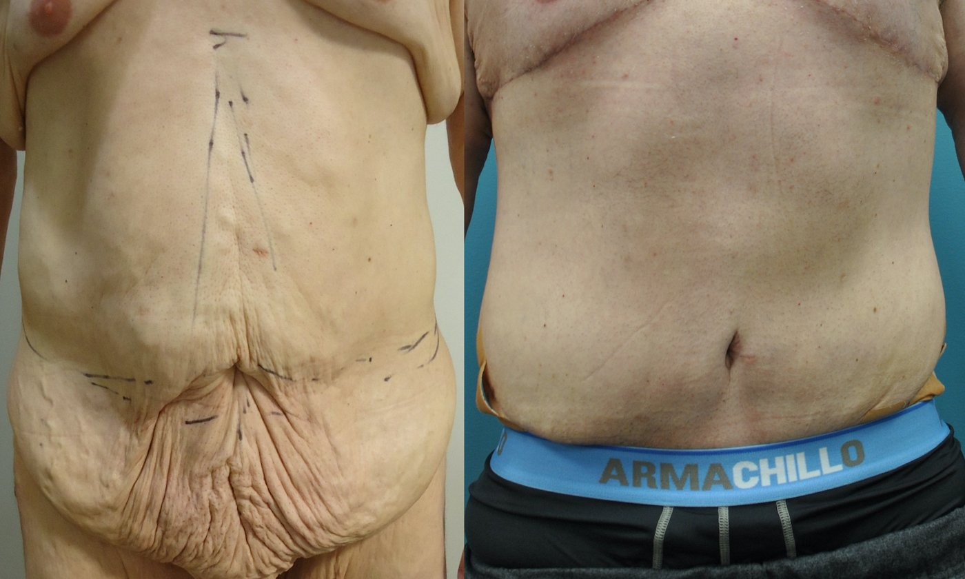 51-year-old male lower body lift,  months after surgery, front view