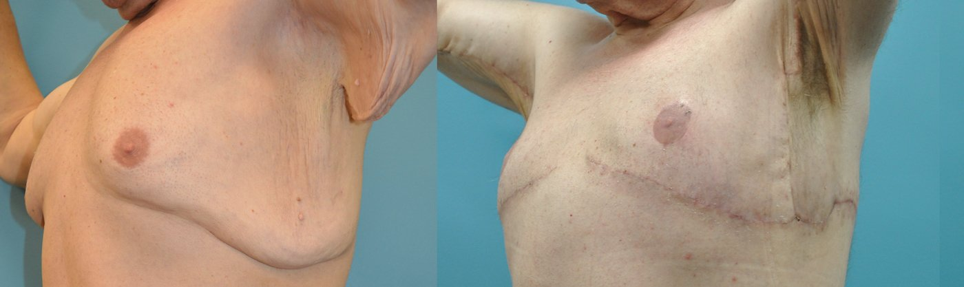 51-year-old male upper body lift, gynecomastia excision, 3 months after surgery, oblique view