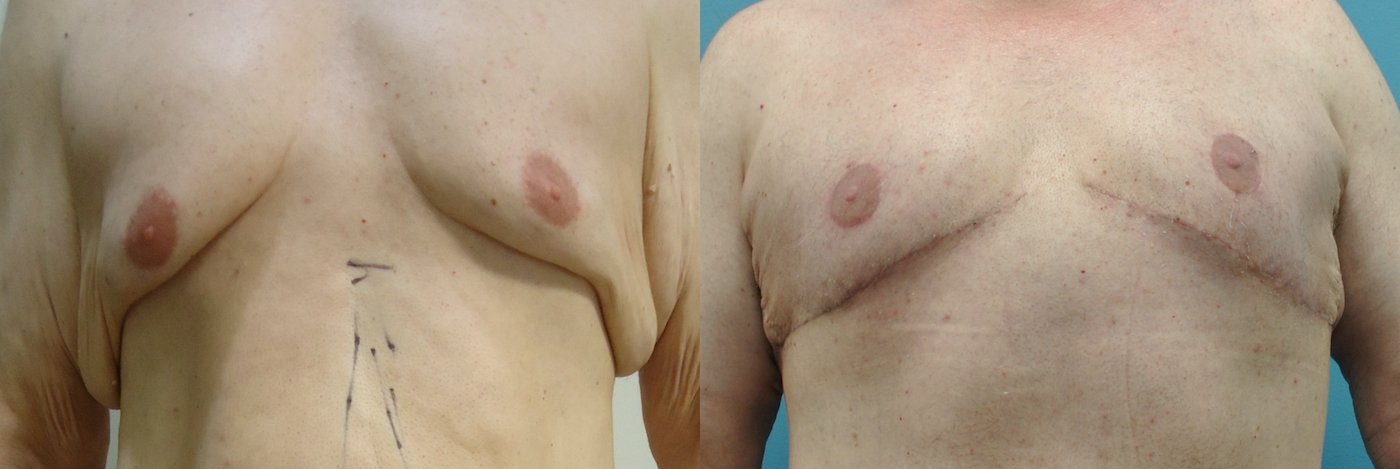 51-year-old male upper body lift, gynecomastia excision, 4 months after surgery, front view