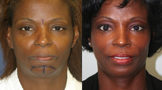 52-year-old, endo brow and chin augmentation (CSC-L), 7 years after surgery, front view