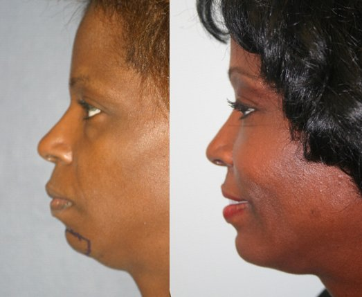 52-year-old, endo brow and chin augmentation (CSC-L), 7 years after surgery side view