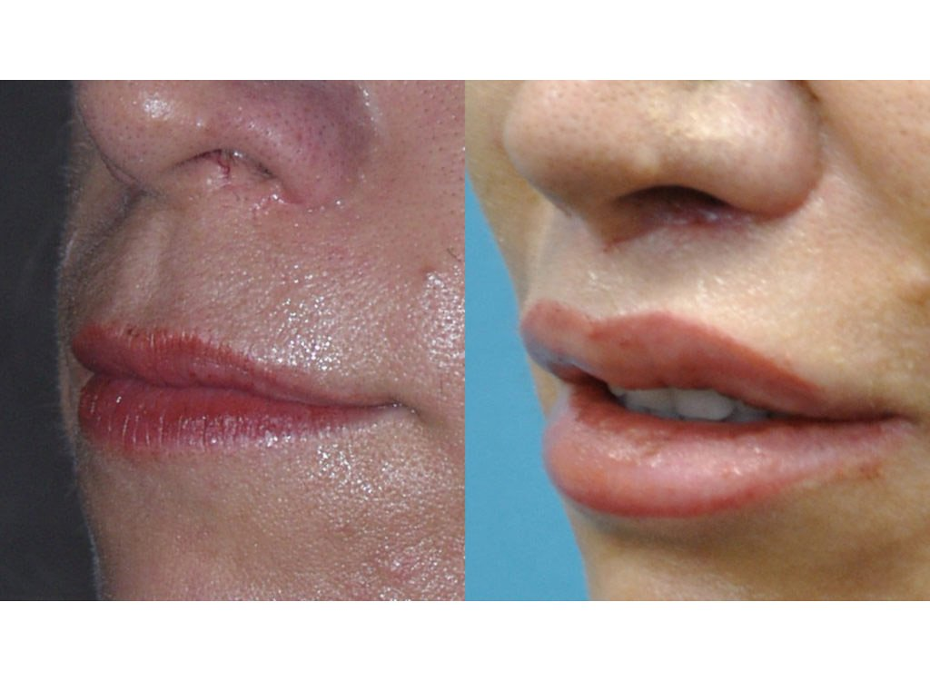 52-year old upper lip shortening 8 months after surgery left oblique view