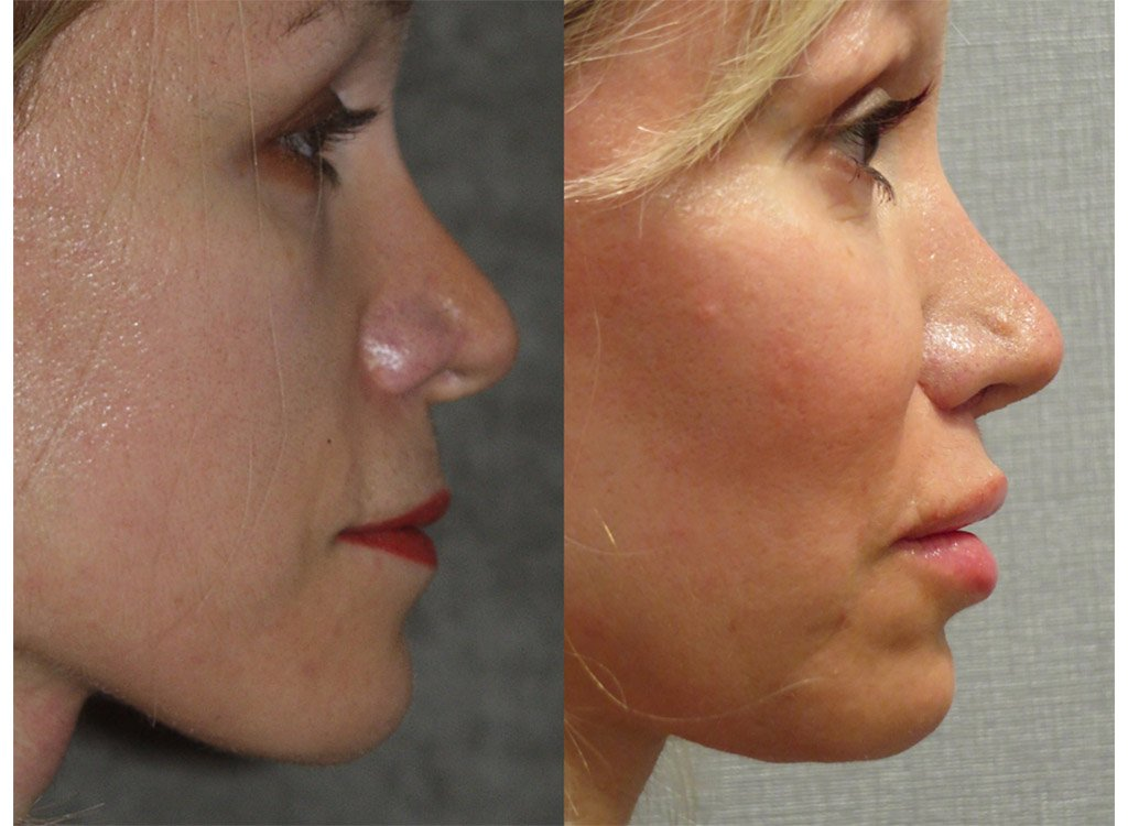 52-year old upper lip shortening 8 months after surgery right side full face view
