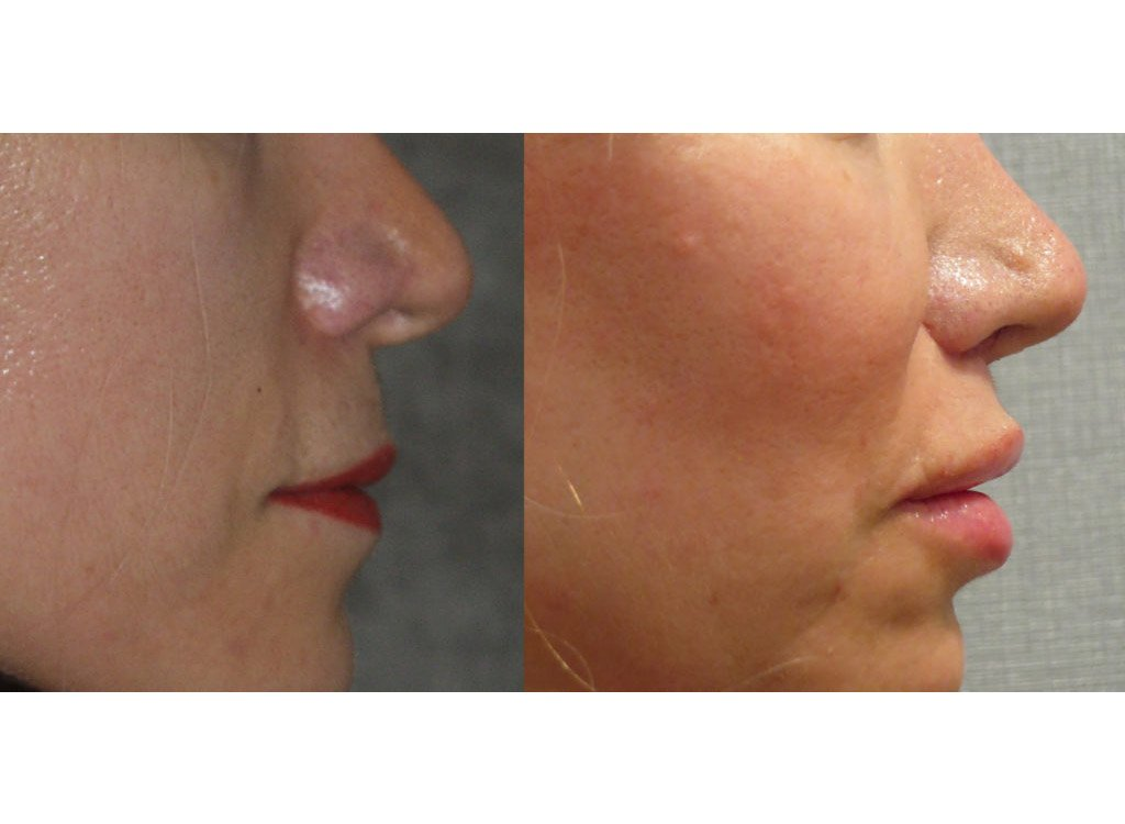 52-year old upper lip shortening 8 months after surgery right side view