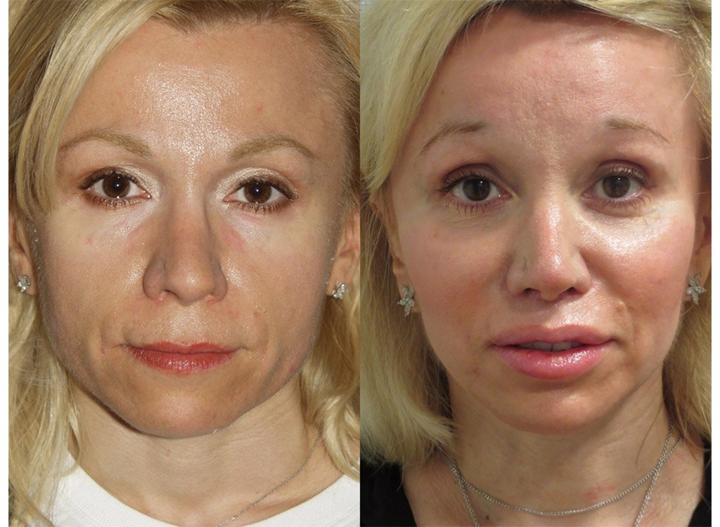 52-year old upper lip shortening, chin and cheek implants  front view