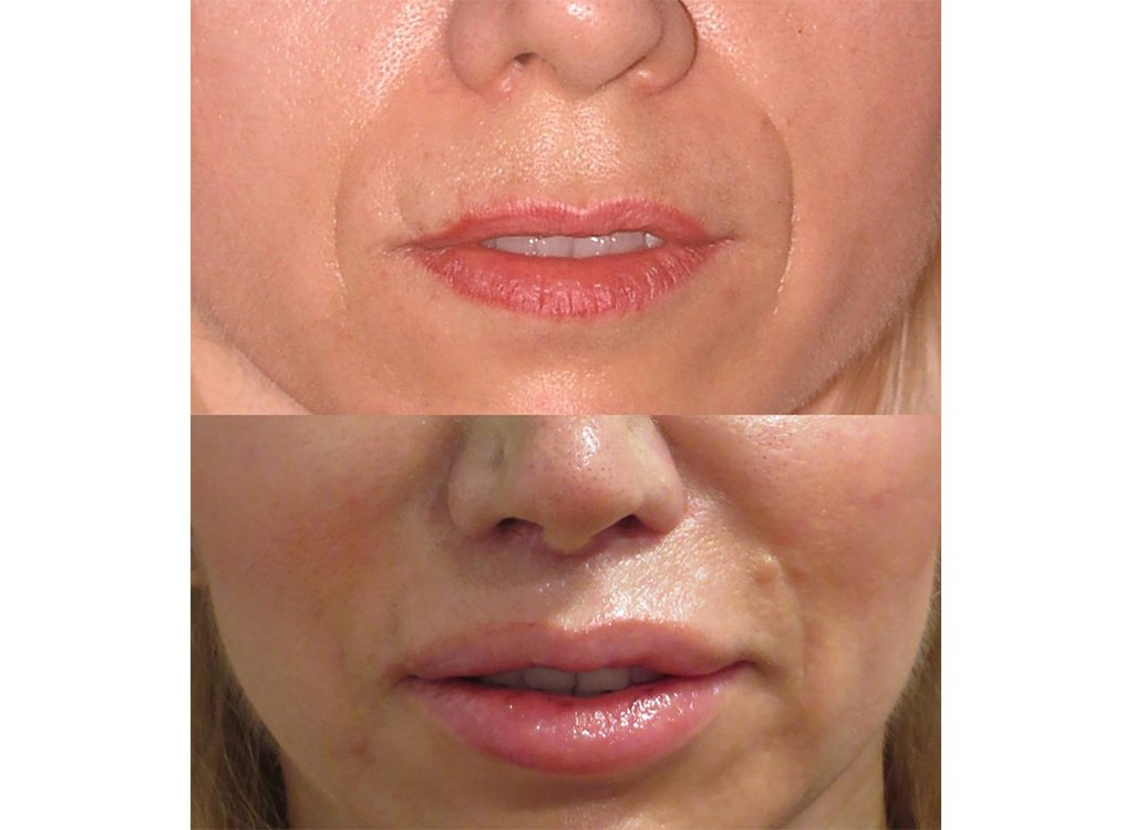 52-year old upper lip shortening with fat injection 8 months after surgery front view