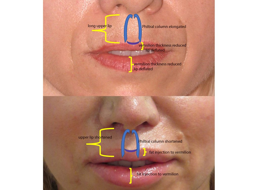52-year old upper lip shortening with fat injection 8 months after surgery front view with markings