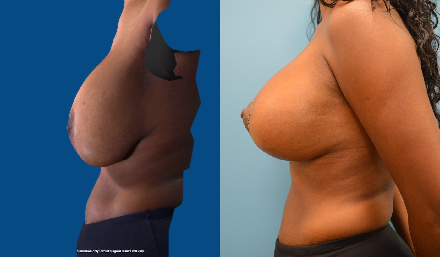54 year-old 10 weeks after explantation ruptured implants and breast auto augmentation left side view
