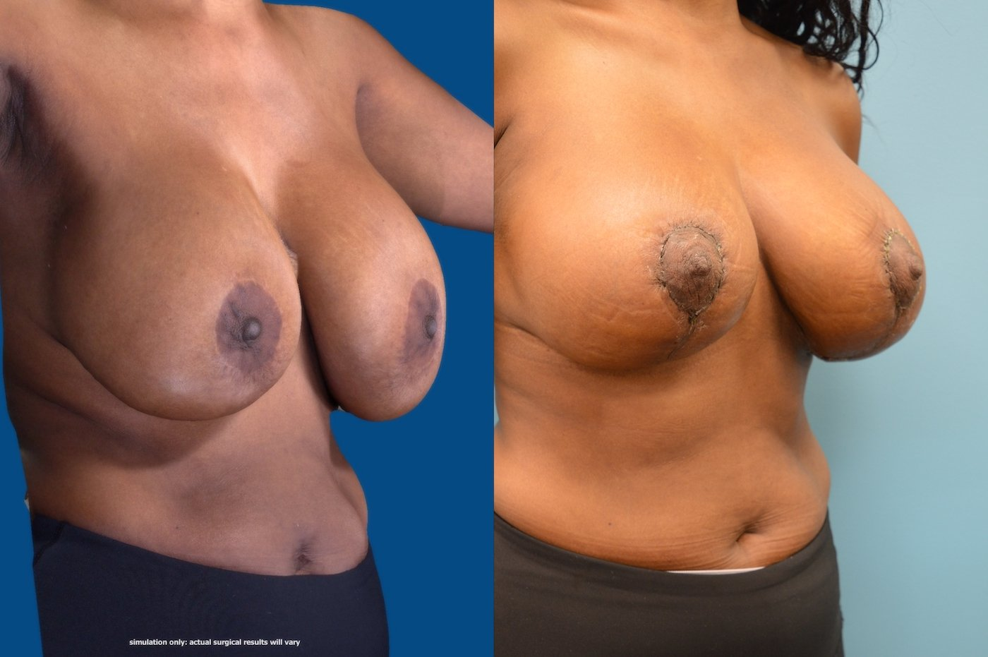 54 year-old 10 weeks after explantation ruptured implants and breast auto augmentation right oblique view