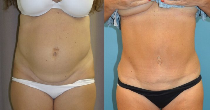 55-year-old, abdominoplasty 13 years after surgery front view
