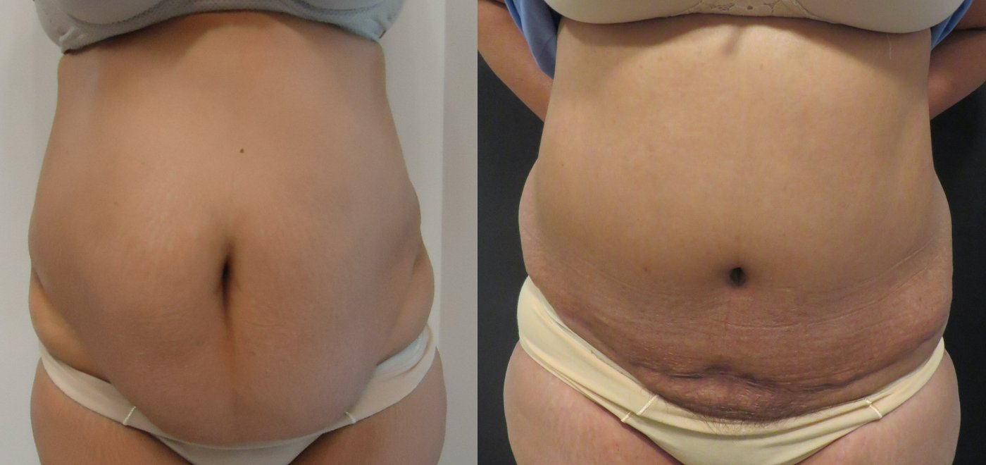 56-year-old abdominoplasty, 6 months after surgery, 1625 gm removal, front view