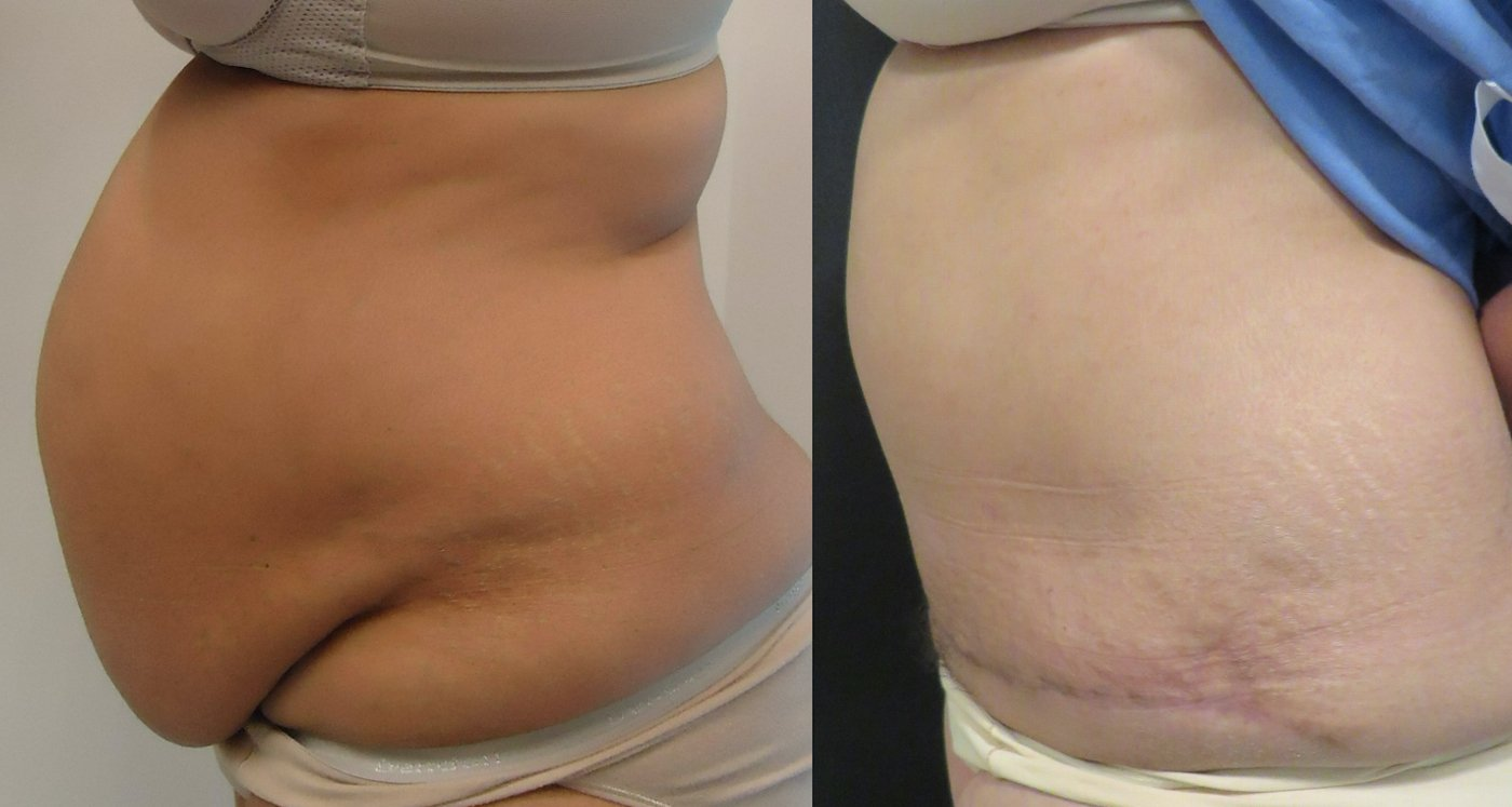 56-year-old abdominoplasty, 6 months after surgery, 1625 gm, side view