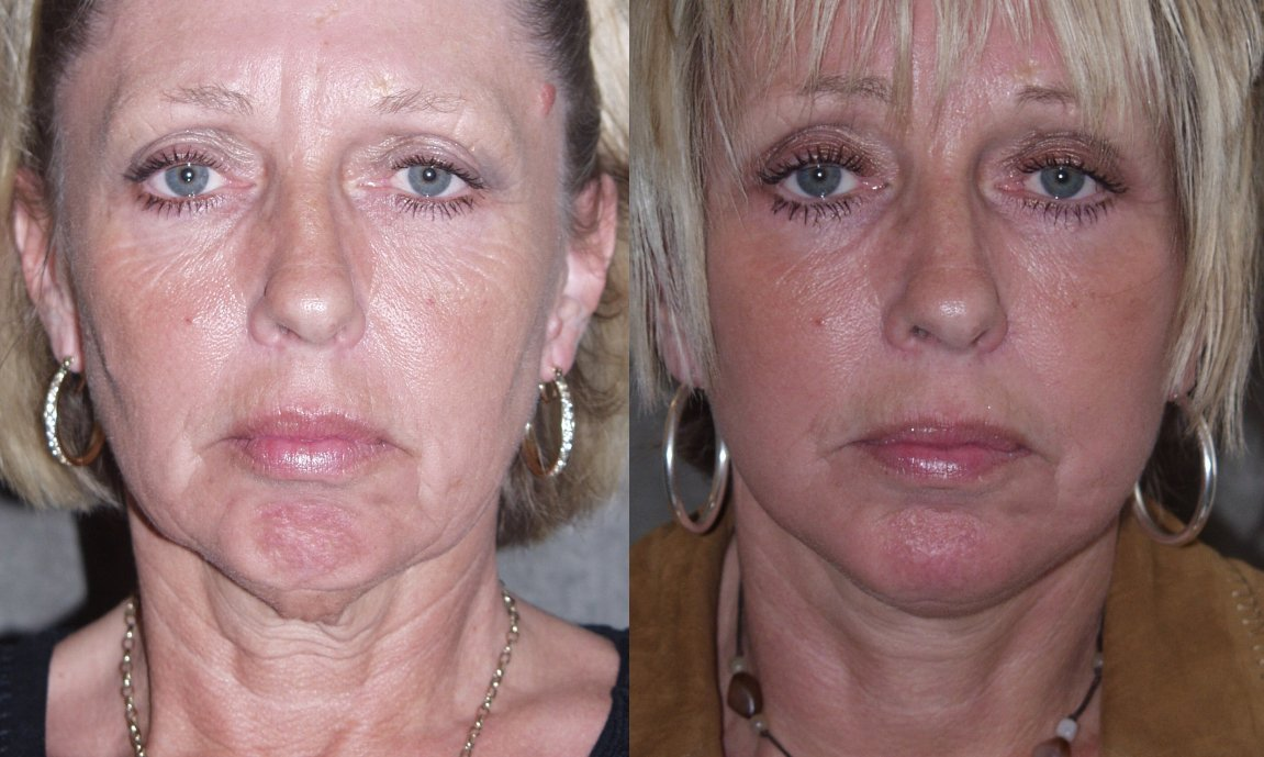 56-year-old, facelift, chin augmentation, 15 months after surgery, front view
