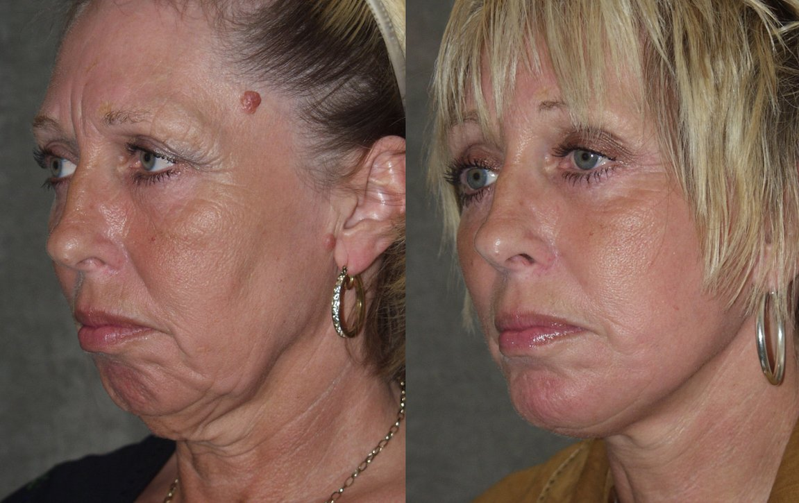 56-year-old, facelift, chin augmentation, 15 months after surgery, oblique view