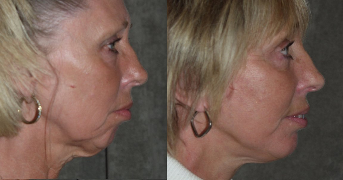56-year-old, facelift, chin augmentation, 15 months after surgery, side view