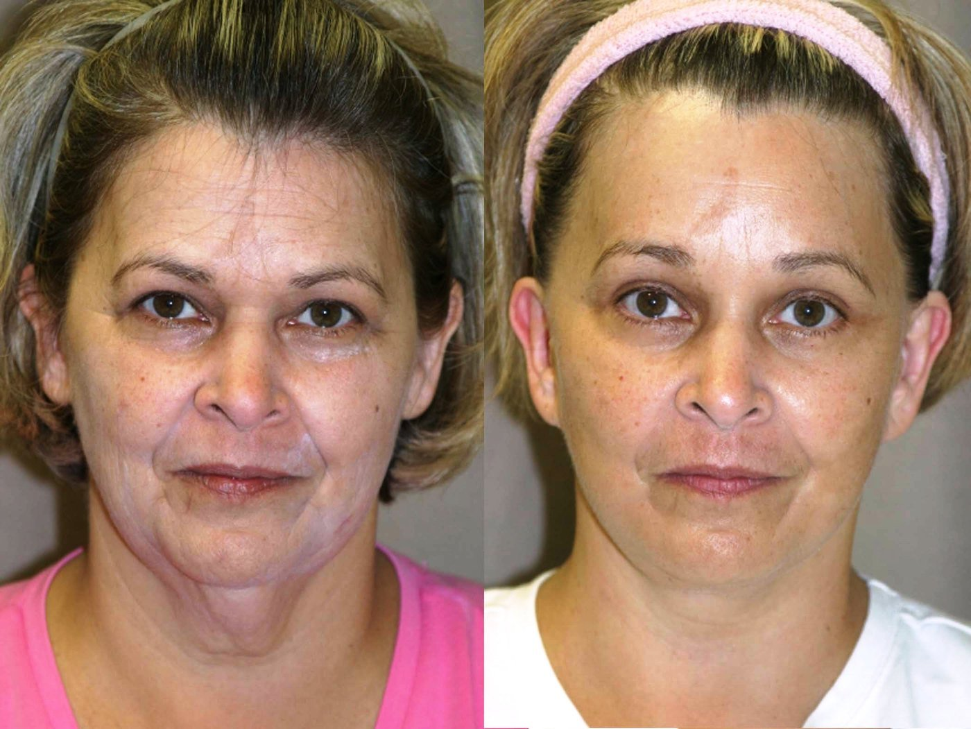 57 year-old, 9 month follow-up after facelift, lower external blepharoplasty with lateral canthoplasty, endoscopic browlift with endotine fixation front view