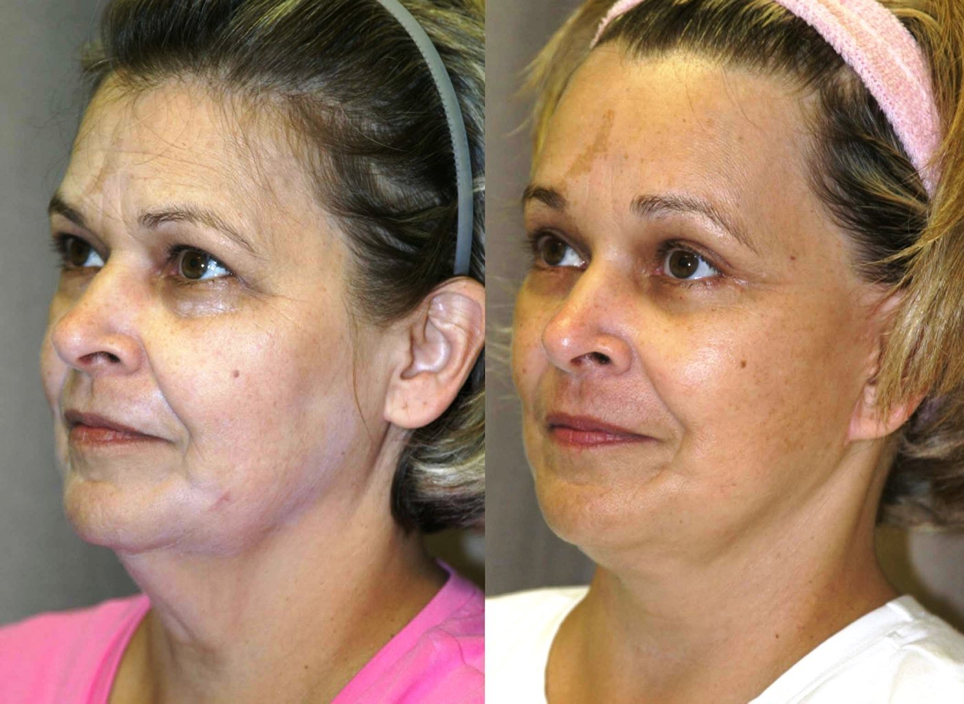 57 year-old, 9 month follow-up after facelift, lower external blepharoplasty with lateral canthoplasty, endoscopic browlift with endotine fixation,oblique view