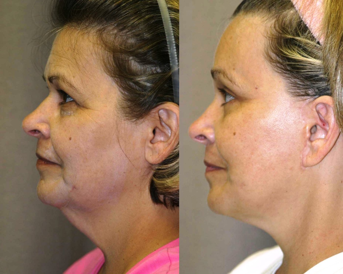 57 year-old, 9 month follow-up after facelift, lower external blepharoplasty with lateral canthoplasty, endoscopic browlift with endotine fixation,side view