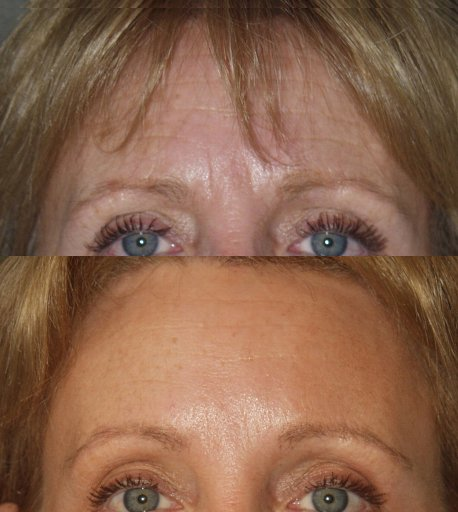 57-year-old endoscopic brow lift, upper and lower blepharoplasty, 4 months after surgery front view