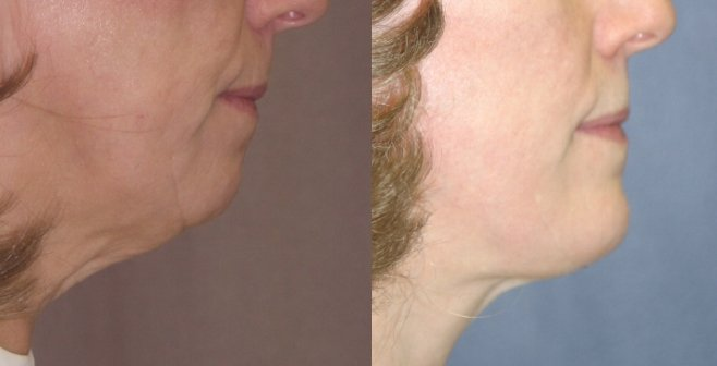 57-year-old, facelift, chin augmentation 2 years after surgery lower face view only, side view