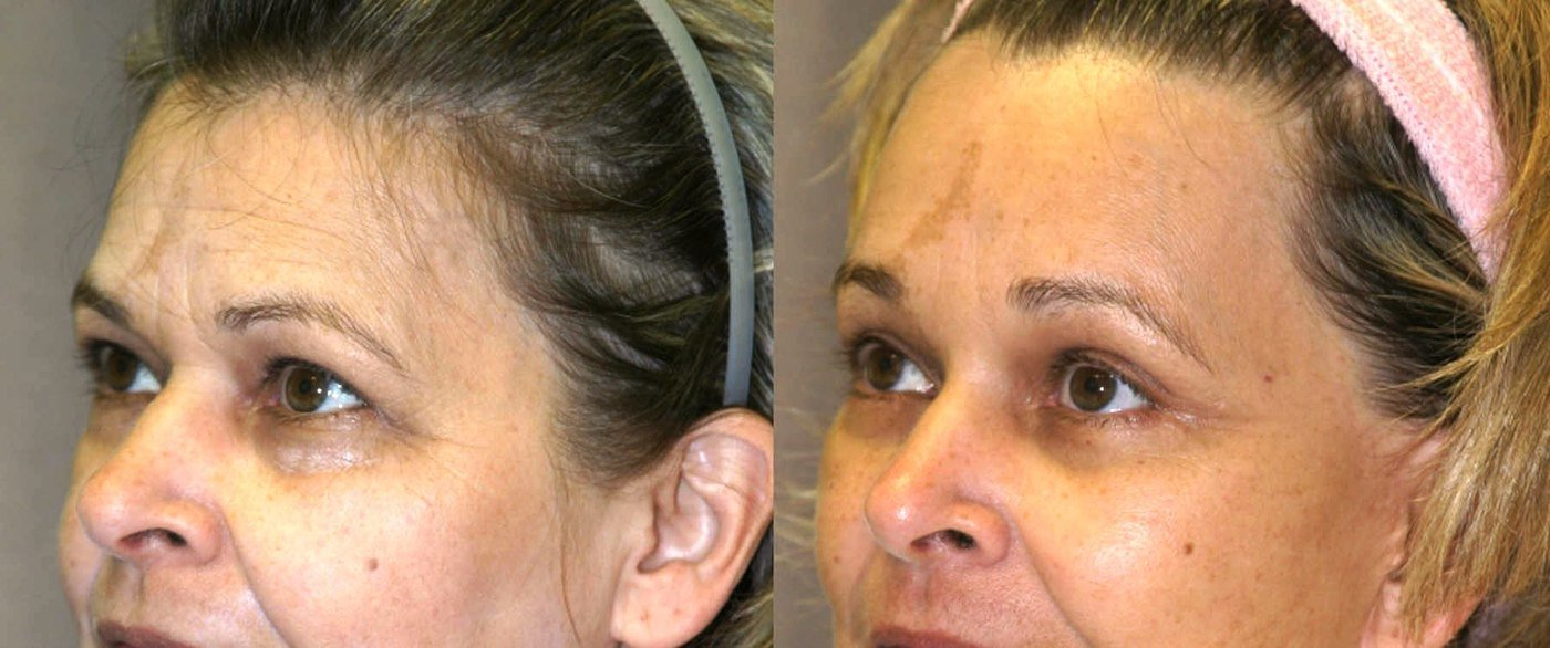 57 year-old, one year after brow lift, oblique view