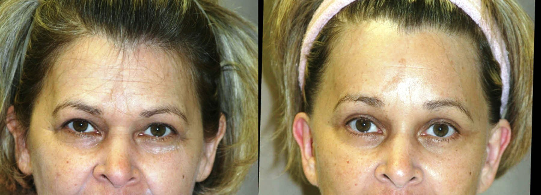 57 year-old, one year after brow lift front view