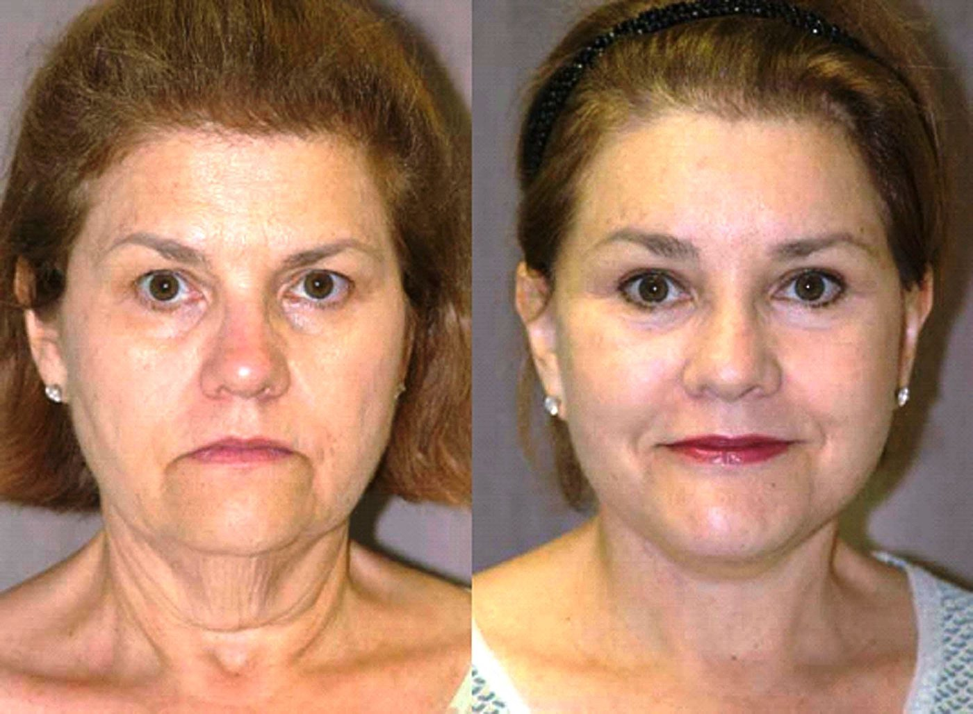 58 year old face lift brow lift eyelids and chin augmentation, 6 month follow-up front view
